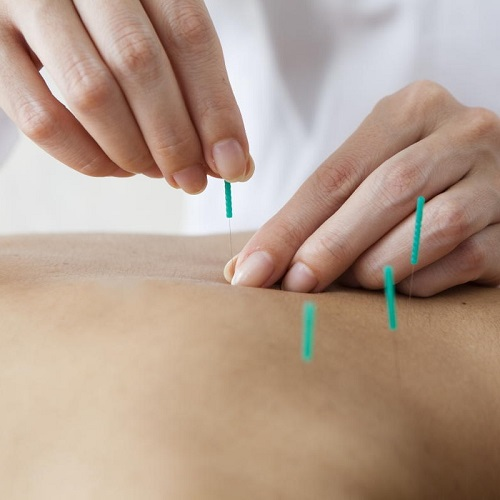 acupuncture-centennial-co