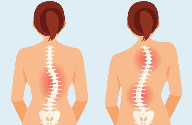 scoliosis-chiropractic-centennial-co