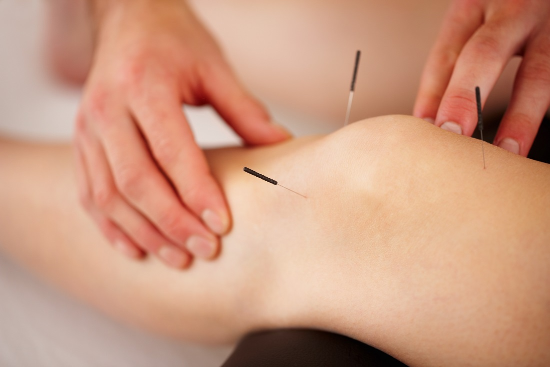 acupuncture-sports-injuries-centennial-denver-co