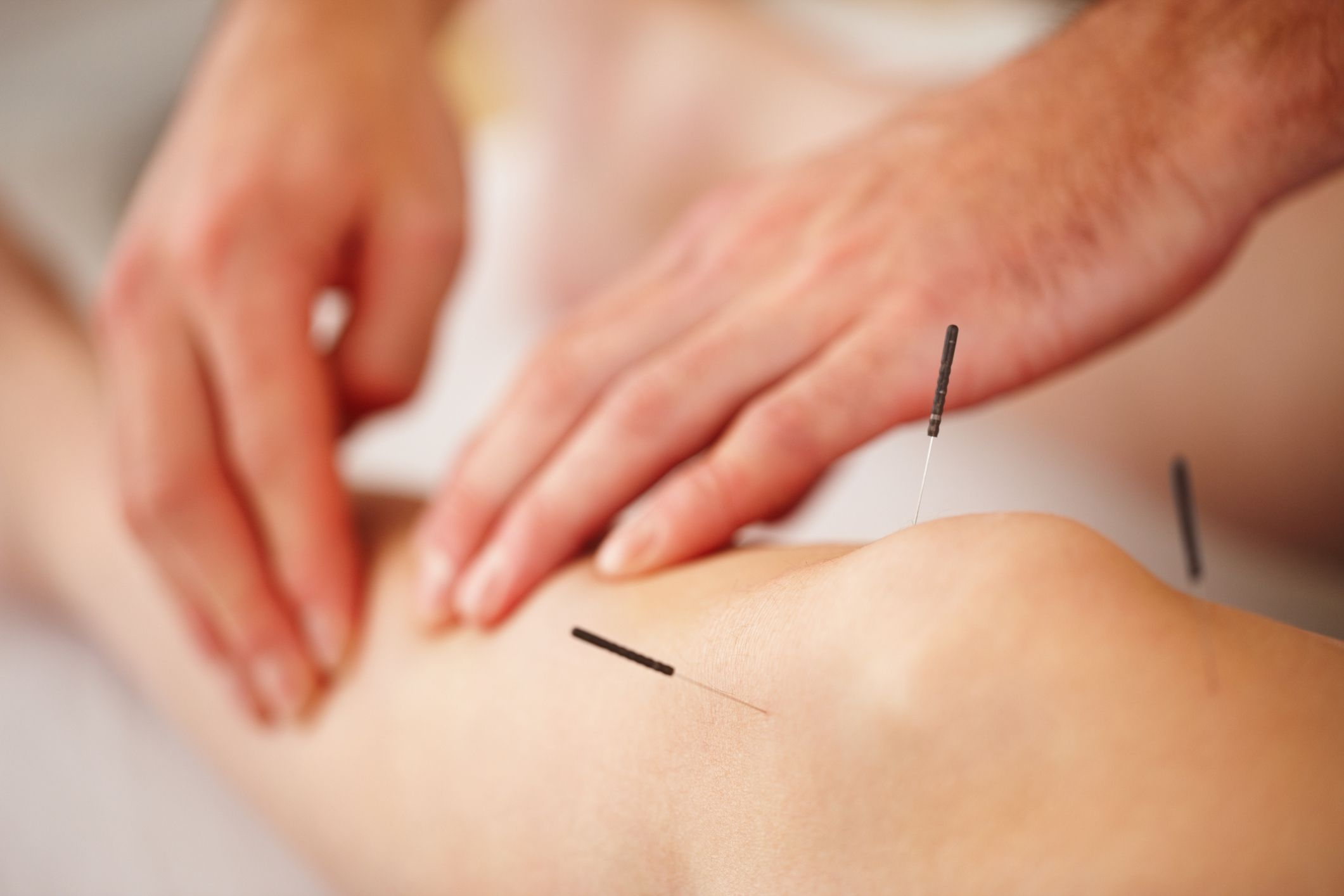 acupuncture-arthritis-centennial-colorado