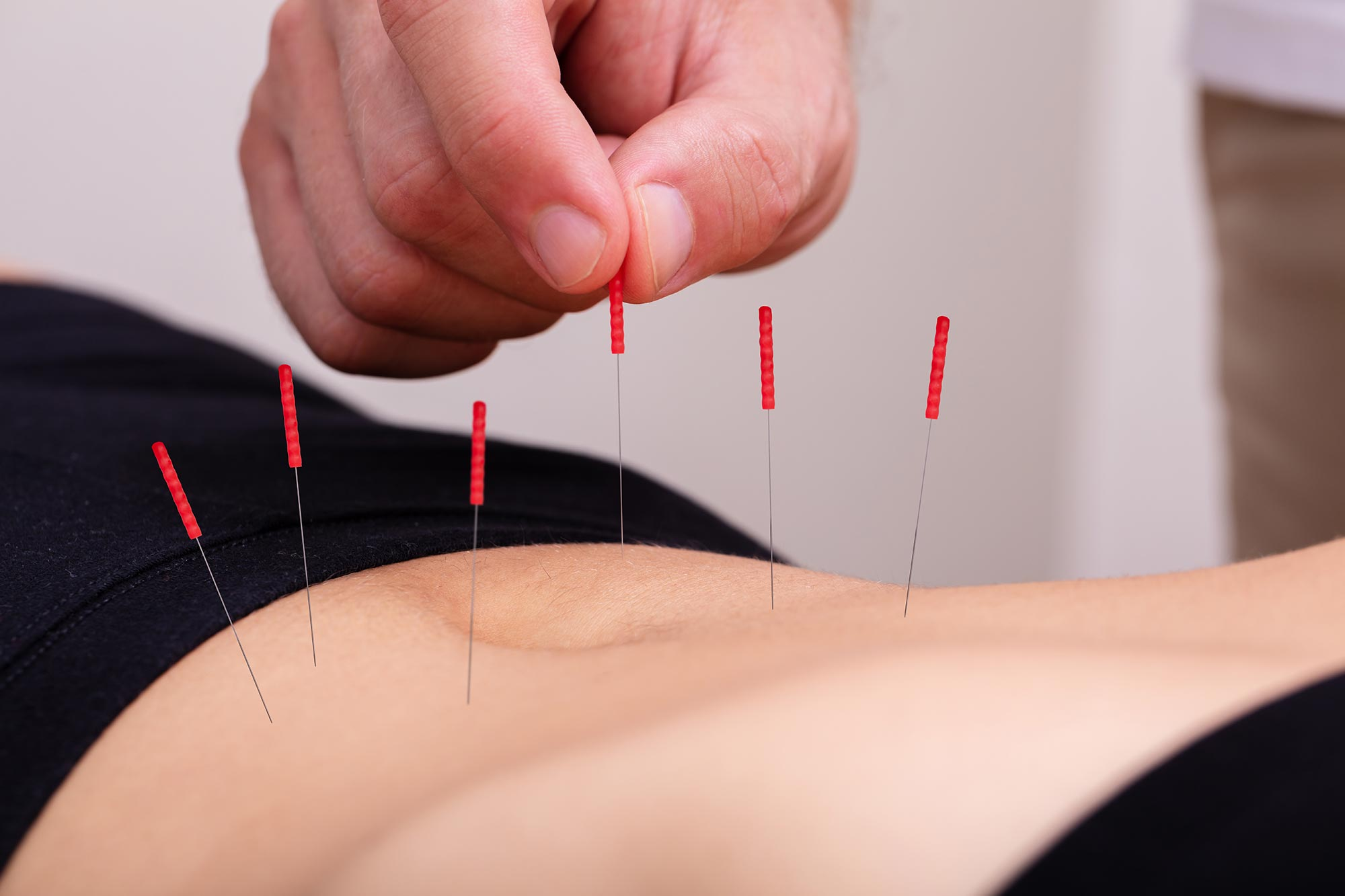 acupuncture-for-menstrual-cramp-relief-centennial-co